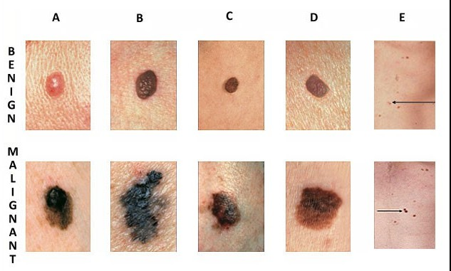 Skin cancer signs to look for